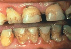 Rotting teeth and gums